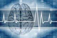Monitor do cérebro imagem de stock royalty free