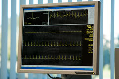 Monitor do electrocardiograma Imagem de Stock