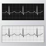 Monitor do pulso do coração Fotos de Stock Royalty Free