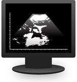 Monitor echography Royalty Free Stock Image