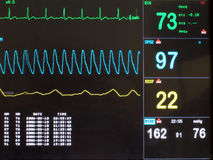 monitor ekg Obraz Royalty Free