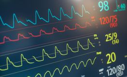 Monitor Heart Rate Beat Royalty Free Stock Images