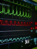 Monitor in the ICU. The waves of blood pressure, blood oxygen saturation, ECG Royalty Free Stock Image