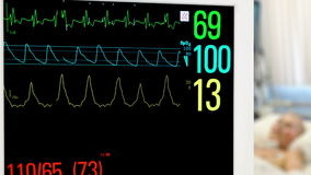 Monitor in intensive care unit. With patient in the background stock video