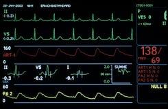 Monitor médico Fotografia de Stock Royalty Free