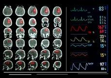 Monitor médico da tela dos campos. Imagens de Stock