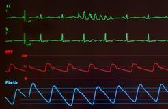 Monitor met plotseling - looppas van Ventriculaire Hartkloppingen Stock Foto's