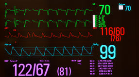 Monitor with Paced Rhythm. Close up of ECG or electrocardiogram showing a paced heart rhythm green lines, arterial blood pressure red line, oxygen saturation Royalty Free Stock Photo