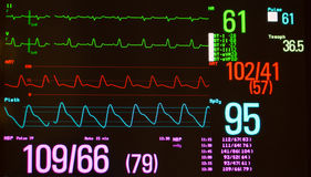 Monitor Showing Intraventricular Conduction Delay and Vital Signs. Monitor with a black screen showing a heart rhythm with Intraventricular Conduction Delay Royalty Free Stock Image