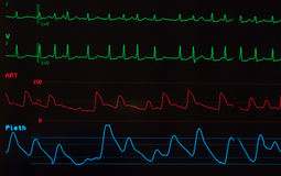 Free Monitor With Atrial Fibrillation Royalty Free Stock Images - 82095029