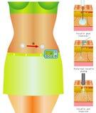 Monitoração da glicose Ilustração Royalty Free