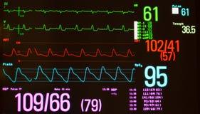 Monitore mostrar o atraso Intraventricular e o Vital Signs da condução Imagem de Stock Royalty Free