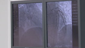 The monitors in the operating room. Vascular surgery,medical therapy stock video footage