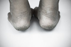 Monochrome or back and white of dirty foot or cracked heels isolate on white background, medical or feet health of the people Stock Photo