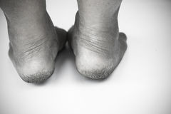 Monochrome or back and white of dirty foot or cracked heels isolate on white background, medical or feet health of the people Stock Images
