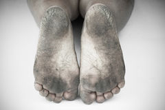 Monochrome ou parte traseira e branco do pé sujo ou isolado rachado dos saltos no fundo branco, médico ou pés da saúde dos povos Imagem de Stock