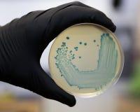 Monocytogenes do Listeria no ágar fotografia de stock royalty free