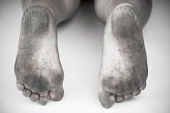 Monokrom eller baksida och vit av den smutsiga foten eller sprucken hälisolat på vit bakgrund, läkarundersökning eller fot hälsa  Arkivfoton