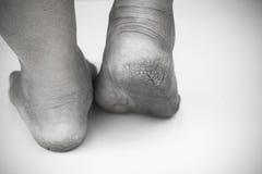Monokrom eller baksida och vit av den smutsiga foten eller sprucken hälisolat på vit bakgrund, läkarundersökning eller fot hälsa  Arkivbilder