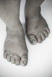 Monokrom eller baksida och vit av den smutsiga foten eller sprucken hälisolat på vit bakgrund, läkarundersökning eller fot hälsa  Fotografering för Bildbyråer