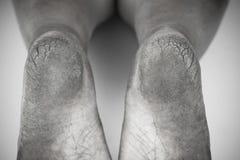 Monokrom eller baksida och vit av den smutsiga foten eller sprucken hälisolat på vit bakgrund, läkarundersökning eller fot hälsa  Arkivfoto