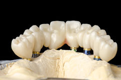 Monolithic zirconia. Restorations full arch implant  supported with the ceramic load in vestibular Stock Image