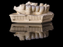 Monolithic zirconia restorations  implant supported with the cer Royalty Free Stock Photo