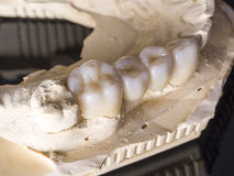 Monolithic zirconia restorations  implant supported with the cer Royalty Free Stock Images