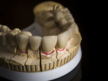 Monolithic zirconia restorations  implant supported with the cer Royalty Free Stock Photography