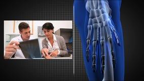 Montage auf Röntgenstrahlen stock video