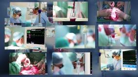 Montage médical. Chirurgie banque de vidéos