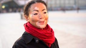 Mooi Afrikaans meisje die met vitiligo zich op de straat bevinden stock footage