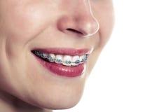 Mooi glimlachend meisje met pal voor tanden stock afbeelding