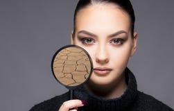 Mooi meisje met het droge dichte omhooggaande concept van het huidprobleem Stock Fotografie