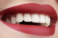 Mooie glimlach met het witten van tanden De perfecte make-up van manierlippen Stock Foto