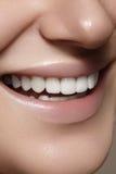 Mooie glimlach met het witten van tanden Tandfoto Macroclose-up van perfecte vrouwelijke mond, lipscare rutine Stock Foto's