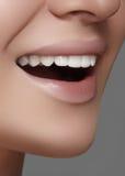 Mooie glimlach met het witten van tanden Tandfoto Macroclose-up van perfecte vrouwelijke mond, lipscare rutine Stock Afbeeldingen