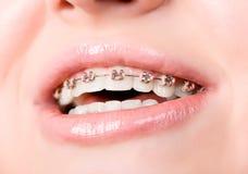 Mooie jonge vrouw met steunen op tanden Royalty-vrije Stock Afbeeldingen