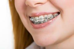 Mooie jonge vrouw met steunen op tanden Stock Afbeelding