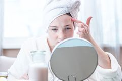 Mooie ongelukkige jonge vrouw die acne op haar gezicht bekijken Concept hygiëne en zorg voor de huid royalty-vrije stock fotografie