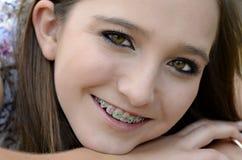 Mooie Tiener met Steunen Royalty-vrije Stock Afbeeldingen
