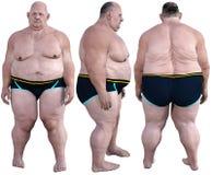 Morbidly sjukligt fett, överviktigt, fetma som isoleras Royaltyfri Bild