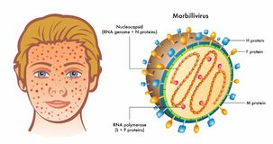 Morbillivirus infection and diagram Stock Photo