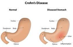 Morbo di Crohn Immagini Stock