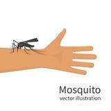 Mordedura de mosquito en vector del ser humano de la mano de la piel ilustración del vector