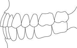 Mordedura dental Fotos de archivo libres de regalías