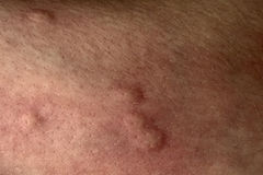 Mordeduras de mosquito en la piel Fotos de archivo libres de regalías