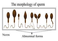 The morphology of the sperm. Normal and abnormal Royalty Free Stock Photo
