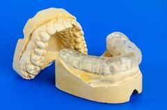 Morso dentario con il modello del gesso immagini stock libere da diritti