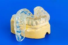 Morsure dentaire avec le modèle de craie photo libre de droits